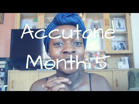 ACCUTANE JOURNEY | MONTH 5 | NO MORE ACNE!