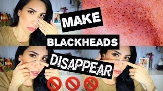 How To GET RID OF BLACKHEADS | 5 DIY Ways & DEMOS