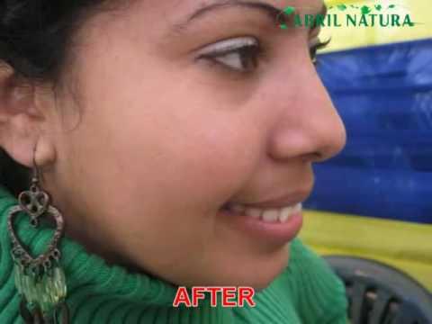 NODULAR ACNE TREATMENT NATURAL