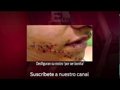 Lo más visto: el presunto traslado de normalistas por policías de Iguala/ Titulares