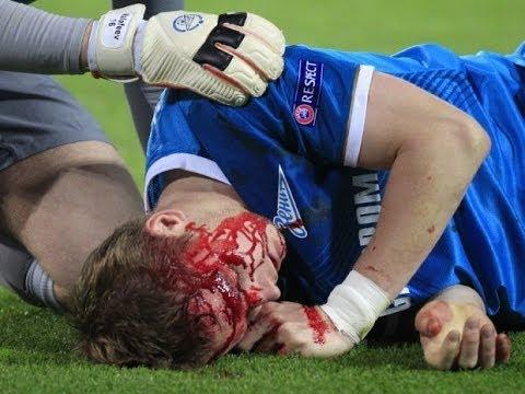 Tremendo golpe al rostro de un jugador del Zenit (Dortmund 1-2 Zenit) 2014