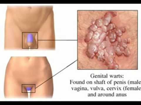 ВПЧ или вирус папилломы человека, представляет собой группу из более 100 ин
