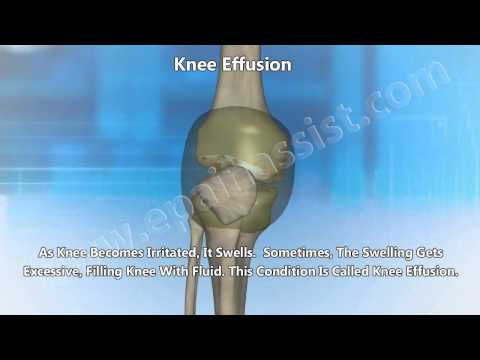 Knee Replacement Surgery|Knee Arthroscopy for Knee Osteoarthritis
