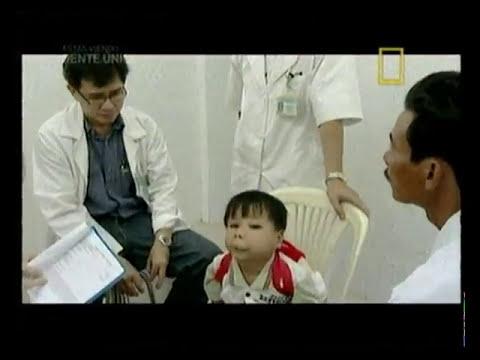 malformaciones craneofaciales en vietnam