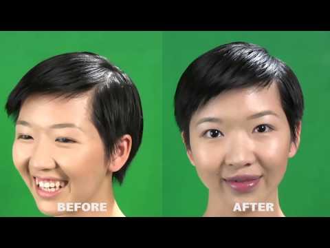 How To Reduce Gummy Smile (CandyLipz)