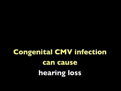CMV m4v