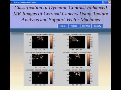 Cervical Cancer Image Classification Using Texture Analysis and SVM Matlab Project