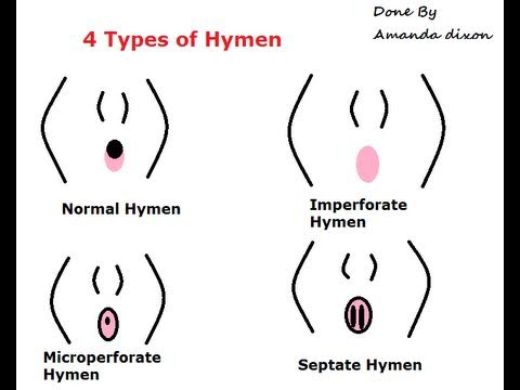 The Different Types Of Womens Hymens-things They Didnt Teach You In Sex-ed video
