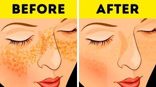 22 LIFE HACKS FOR YOUR SKIN