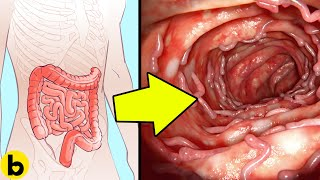 5 Home Remedies For Natural Colon Cleansing