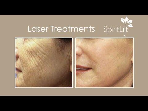 Laser Treatments | Laser Skin Resurfacing | San Diego