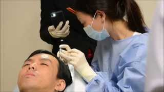 Biofibre Hair Implant for Balding at Premier Clinic, Kuala Lumpur