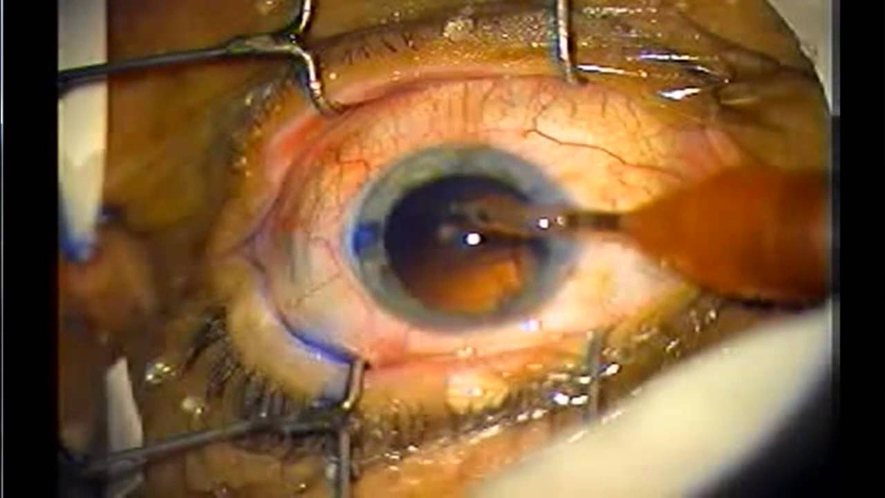 Cataract Surgery In 6 Minutes Narrated Dr Sibley Florida