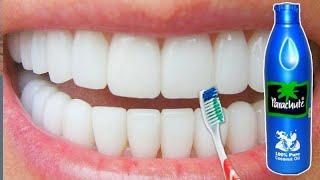 सिर्फ 2 मिनटों में पीले दांतों को मोती की तरह चमका देगा यह सबसे अद्भुत घरेलु नुस्खा |Teeth Whiten !