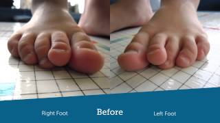 Correct Toes Helps Child with Crooked Toes