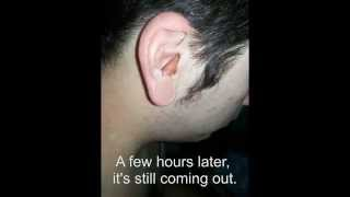 Worst Ear Infection Ever Must See VideoMp4Mp3.Com