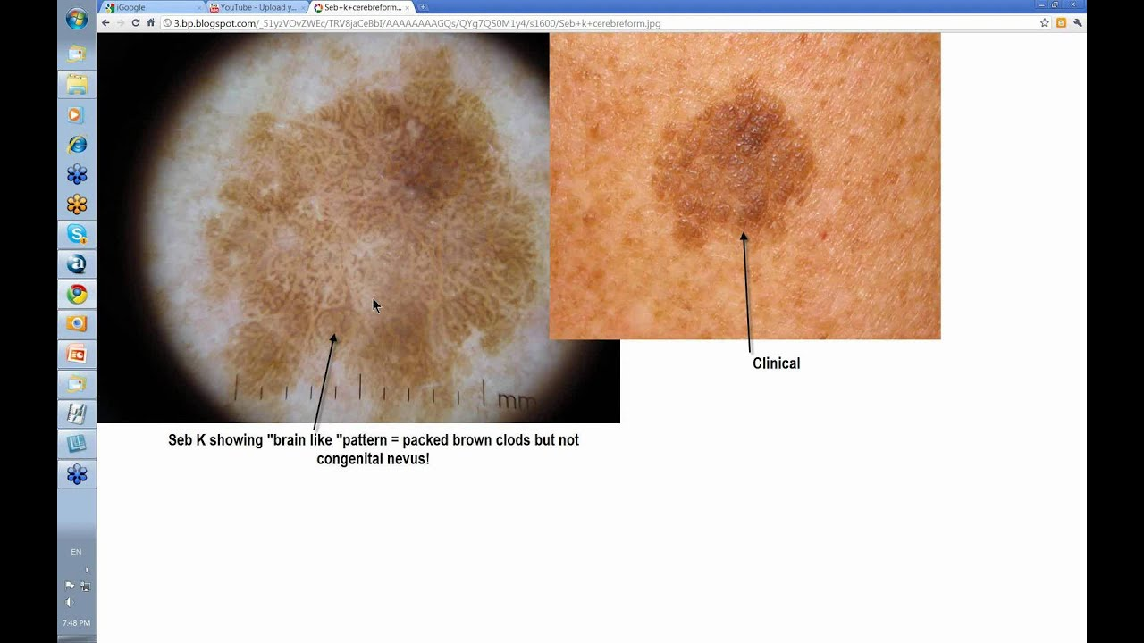 Dermoscopy Made Simple - Seborrhoeic Keratoses - YouTube