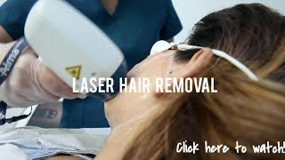 Laser Hair Removal FAQ | Getting My Face Lasered!