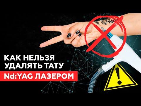 КАК НЕЛЬЗЯ УДАЛЯТЬ ТАТУ Nd:YAG ЛАЗЕРАМИ!!! РУБЦЫ ПОСЛЕ УДАЛЕНИЯ ТАТУ! #удалениетату #рубцы