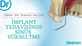 İmplant Uygulaması İçin Sinüs Yükseltme, Sinus Lifting and PRF for Implant Surgery