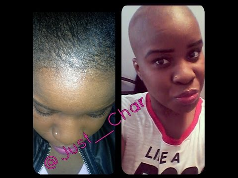 How To: Combat/Cure Alopecia Hair Loss With Biotin & Pumpkin Seed Oil