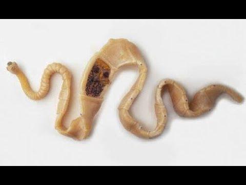 ★ Клади зубчик чеснока под подушку и съедай утром. Это профилактика глистов и других паразитов.