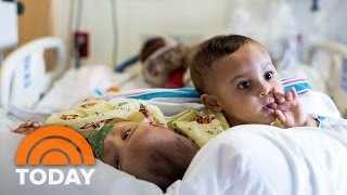 Adorable Conjoined Twin Sisters Separated After Marathon Surgery | TODAY