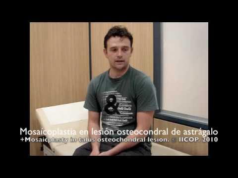 MOSAICOPLASTIA EN LESION OSTEOCONDRAL DE ASTRAGALO