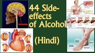 sharab ke 44 nuksaan || 44 side effects of alcohol on the body (Hindi)