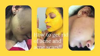 How to get rid of acne and acne scars from our face - Sosi Habeshawit