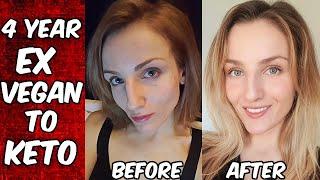 3 Year Ex Vegan Interview - Bloating, Hair Loss, Cystic Acne, Gaunt Face, No Libido, Brain Fog
