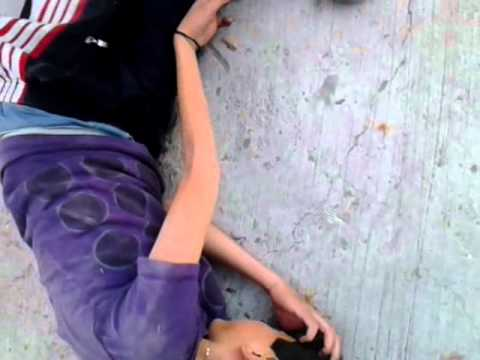 Niño se fractura la mano en skateboard