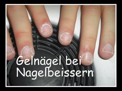 anleitung geln gel bei nagelbeissern youtube. Black Bedroom Furniture Sets. Home Design Ideas