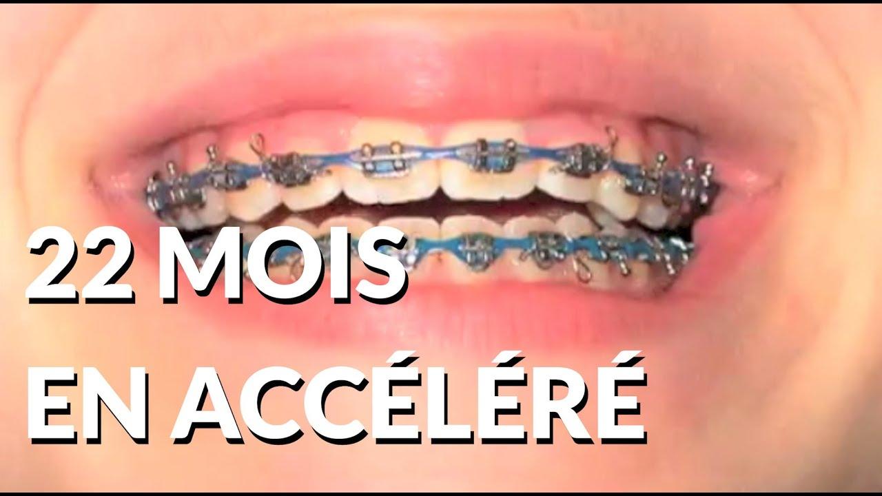 22 Mois De Bagues En 2 Minutes Appareil Dentaire Info