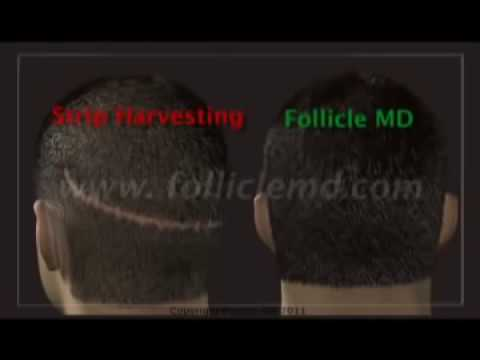 Neograft Automated FUE no scalpel no stitch hair transplant by Dr Malouf