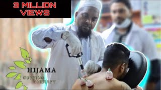 HIJAMA (Wet Cupping) | BENEFITS OF HIJAMA |  HINDI | MUMBAI