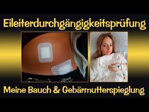 Langer Kinderwunsch / Eileiterdurchgängigkeitsprüfung / Bauch & Gebärmutterspieglung