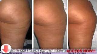What You Need to Know About Cellulite Treatment