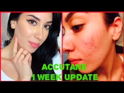 Accutane Journey   My 1 week UPDATE !!!! Results & Side Effects