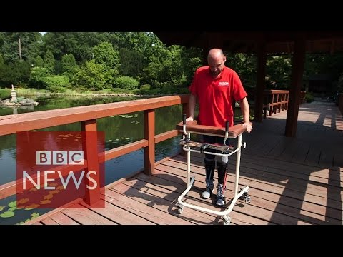 Paralysed Man Walks After Cell Surgery - Bbc News video