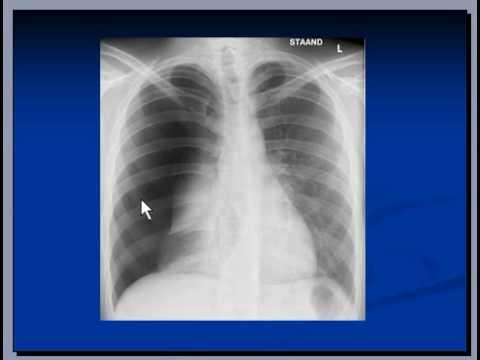 Chest x ray interpretation pneumothorax youtube