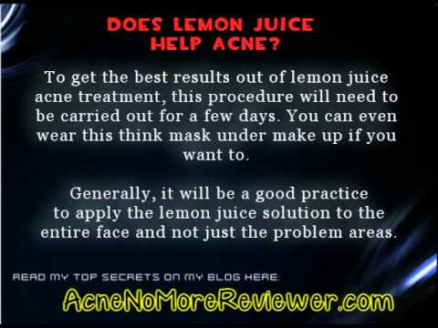 Does Lemon Juice Help Acne - Exactly What Do You Think?