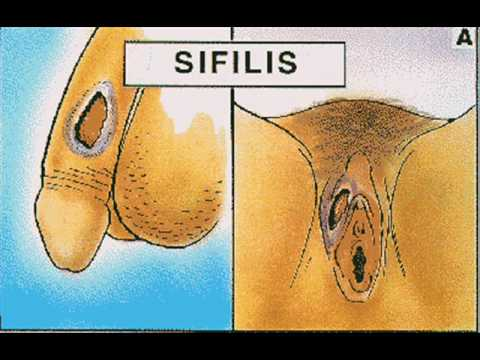 Enfermedades de transmicion sexual ETS