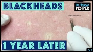 MORE Back Blackheads from Heaven!