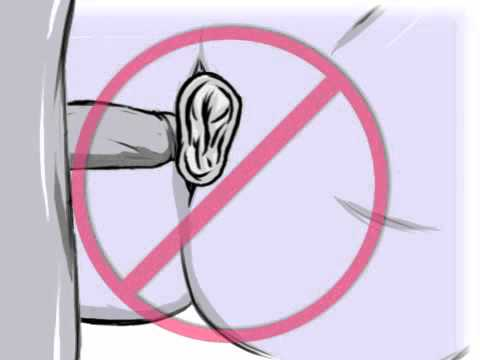 How to use female condom