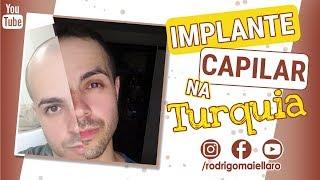 IMPLANTE CAPILAR NA TURQUIA (PARTE I) - Rodrigo Maiellaro