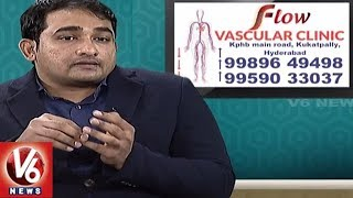 Varicose Veins Problem | Symptoms and Treatment | Dr. Abhilash | Good Health