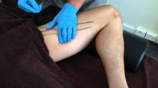 Dry Needling: Gracilis