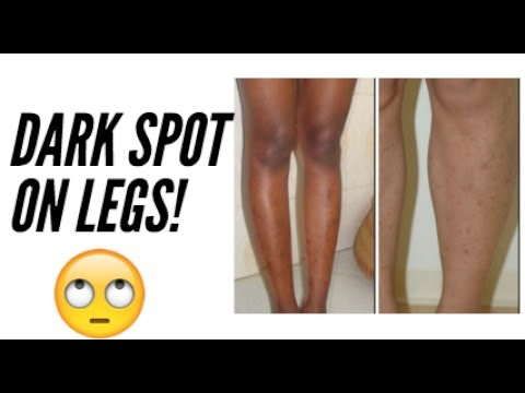 photo How to Get Rid of Leg Acne