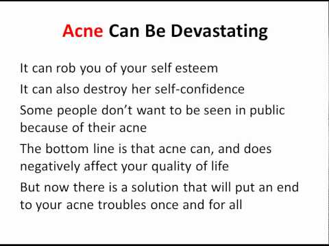 Acne Scar Removal - Get Rid of Your Acne Scars